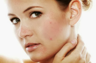 Acne No More Mike Walden Review - acne no more program