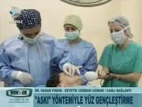 iple-yüz-gerdirme-ameliyatı-izle-doktorum