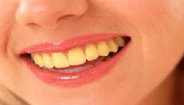 Cara Membersihkan Gigi Kuning Akibat Rokok Secara Alami