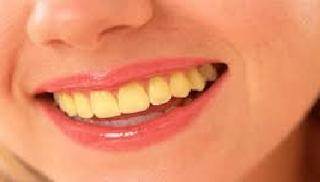 cara membersihkan gigi kuning akibat rokok  membandel dan bau mulut menjadi putih berkarat anak usia 1 tahun hitam balita berkerak berkarang kulit jeruk baking soda flek minum kopi permanen
