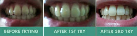 Smile Brilliant Teeth Whitening Kit Review Result