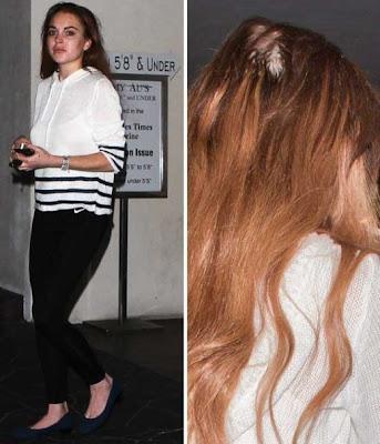 Lindsay-Lohan-Is-Losing-Her-Hair