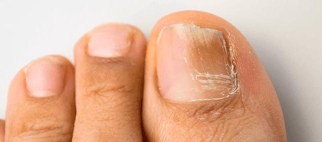 Como curar el hongo en el pie los talones