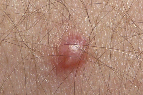 Que peut causer des boutons du vagin?