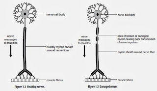 Different nerve axons between health normal nerves and Multiple Sclerosis nerves medical Health Treatment Therapy