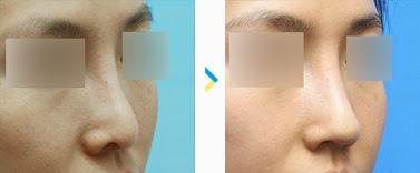 Permak Kembali Hidungmu dengan Operasi Plastik Hidung Korea