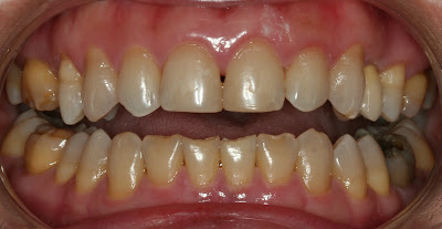 front view of teeth after implant restoration