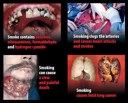 Tenga cuidado de cigarrillos es la causa de cáncer de pulmón