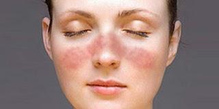 Kenali Penyakit Lupus dan Pengobatannya