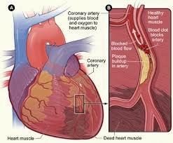 Obat Untuk Penyakit Jantung Koroner