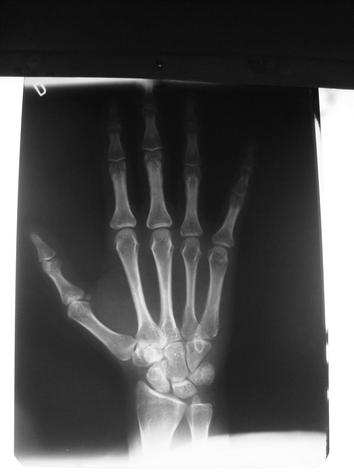 Radiologia 1 mano proyecci n p a nota a p for Cuarto oscuro rayos x