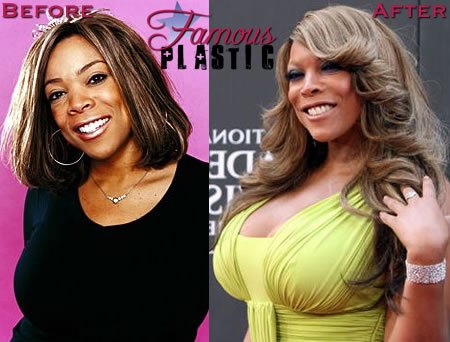 Wendy Williams Plastic Surgery Before and After Breast Implants ...