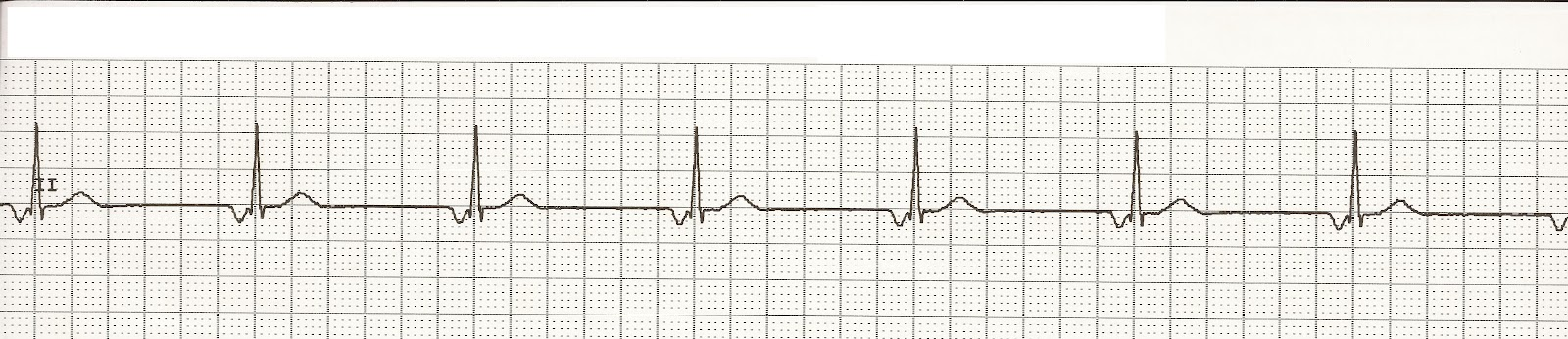 EKG Rhythm Strips 28  Junctional RhythmsAccelerated Junctional Rhythm