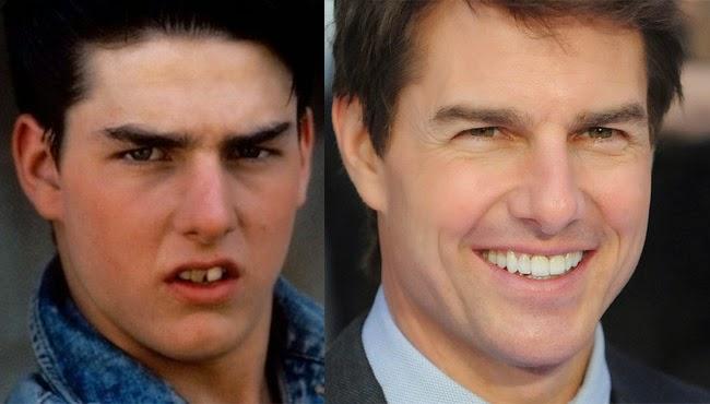 famosos con nueva dentadura tom cruise