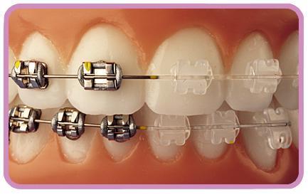 Infección y dolor de muelas: Sobre la ortodoncia.