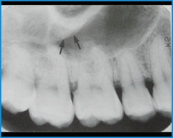 Zygomatic Process Of Maxilla X Ray Dental Student Study G...
