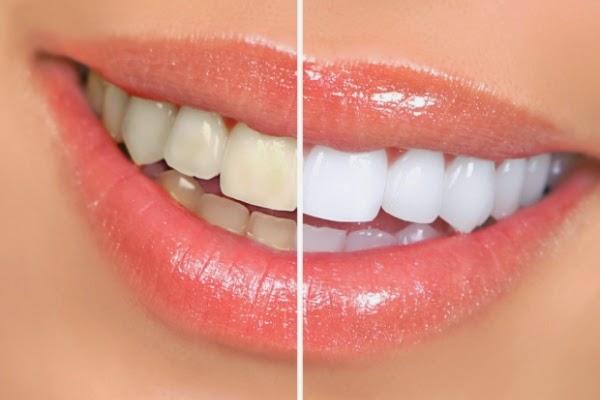 kako izbjeliti zube, izbjeljivanje zubi