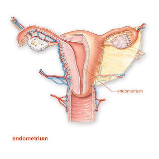 pengobatan endometriosis tanpa kuret