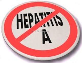 Lo que usted debe saber sobre la Hepatitis A