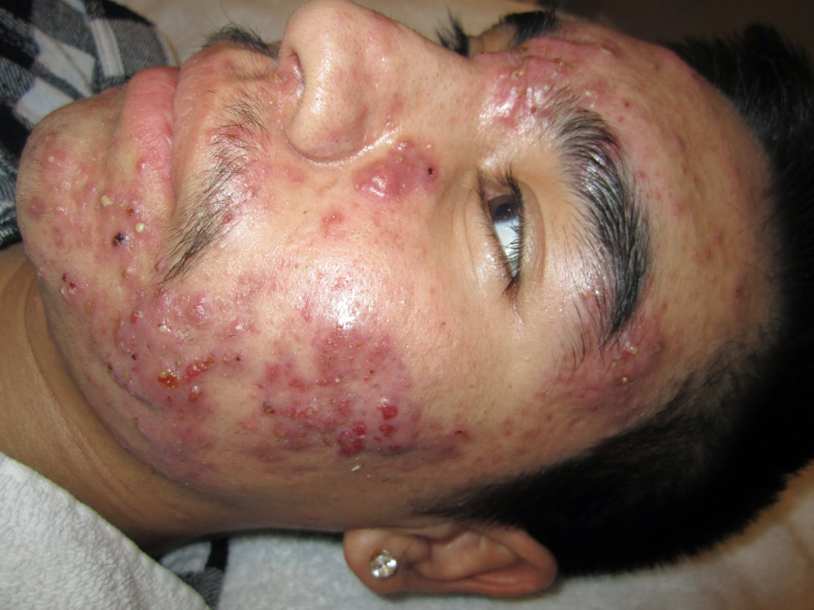 Staph Infection…Cmonly Mistaken for Acne | Skintherapy