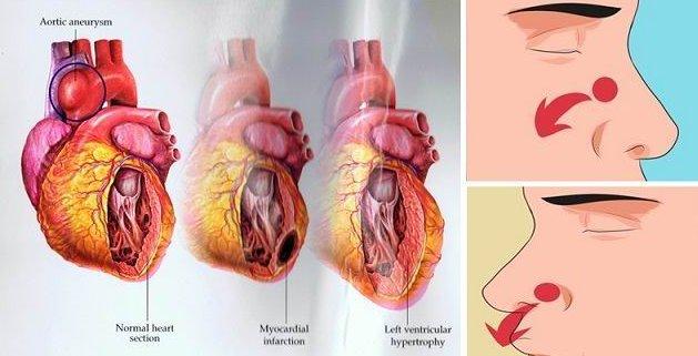 Estos son los 9 síntomas peligrosos de la presión arterial alta que no se debe ignorar