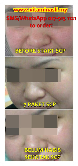 testimonial shaklee collagen powder