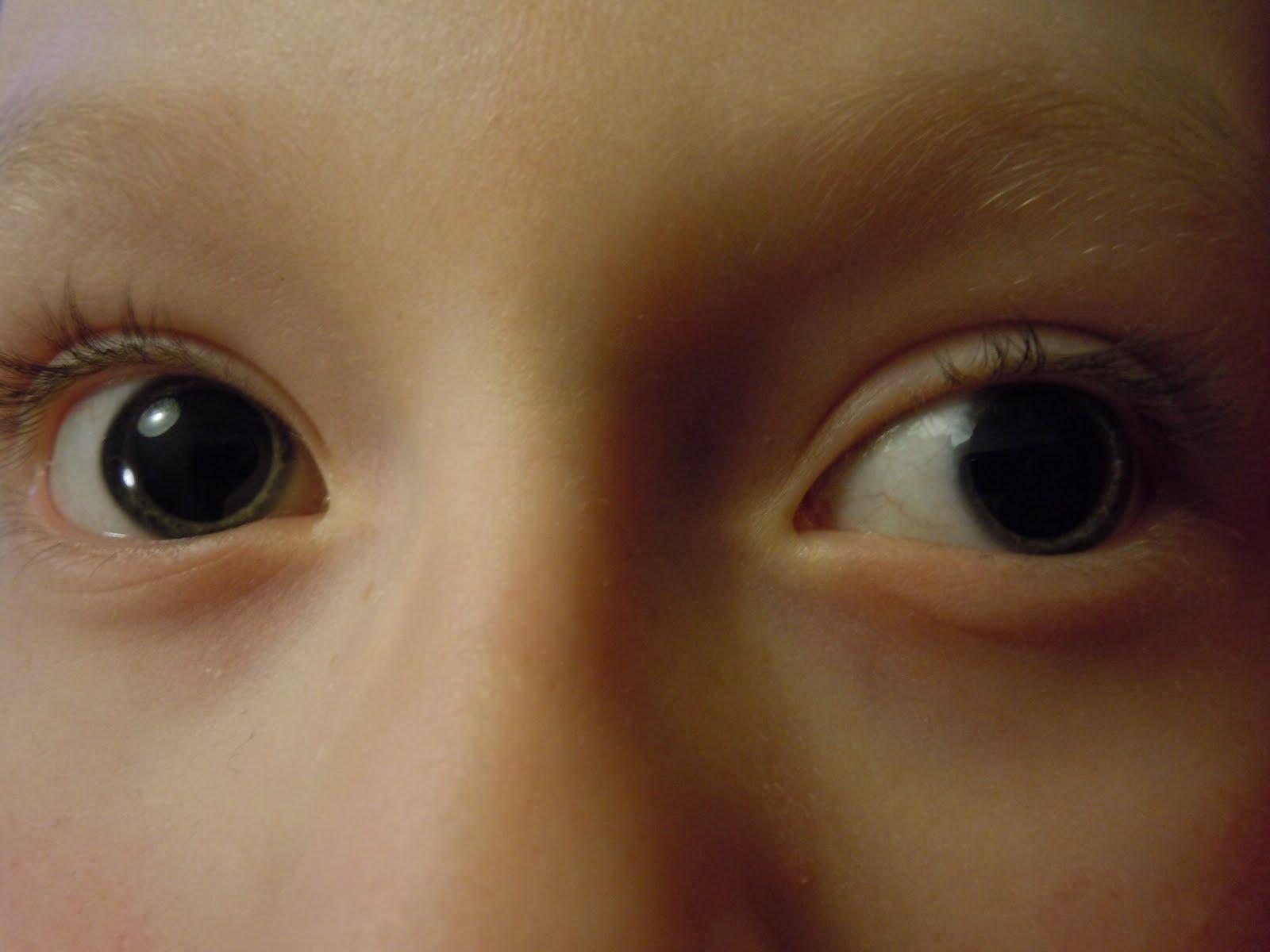 anledningar till stora pupiller