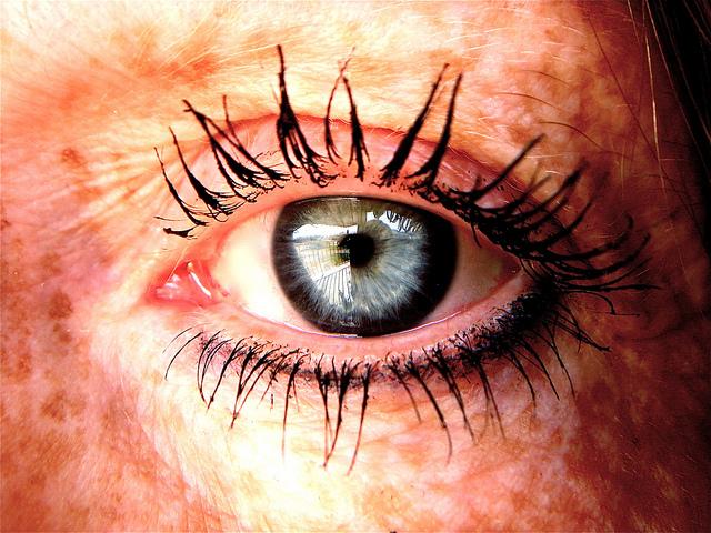Obat Alternatif Kelainan Pigmen Atau Vitiligo