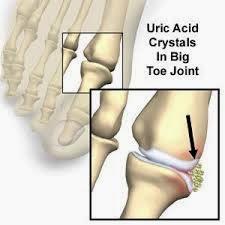 Cara Tradisional Sembuhkan Penyakit Osteoarthritis