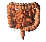 Info Penyakit Kronik Kanser Usus