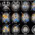 Emociones y activación cerebral