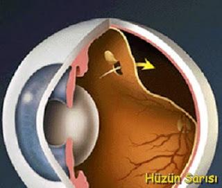 retina-yirtiklari