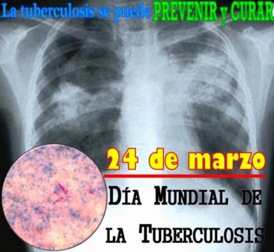 Imagen por el Día Mundial de lucha contra la tuberculosis