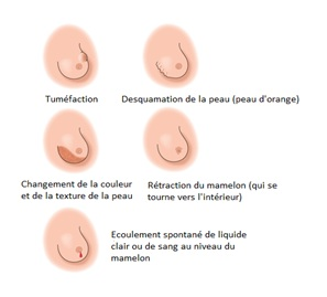 Bracelet recherche sur le cancer du sein