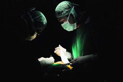 operasi kutil kelamin