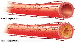 Arterita: terapii alopate, intrebari si raspunsuri