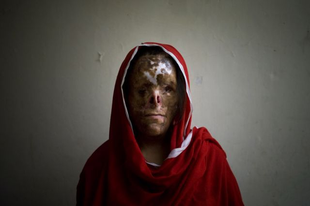 acid terrorism against women in pakistand-the big taboo horrible photos,pics,pictures