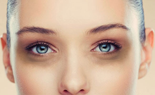 how to remove dark eye circles naturally