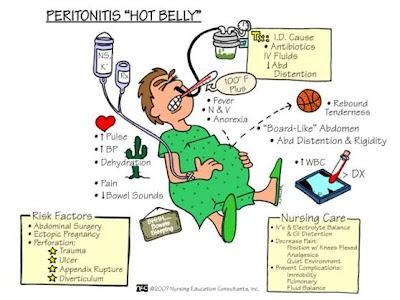 Peritonitis Hot Belly Abc Medicine