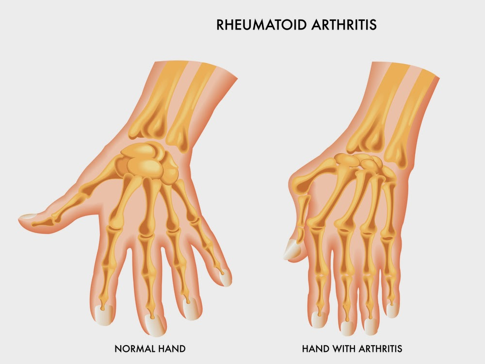 What Does Gluten Free Diet Have To Do With Rheumatoid Arthritis Ra