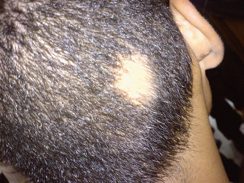 Low Zinc Levels And Hair Loss