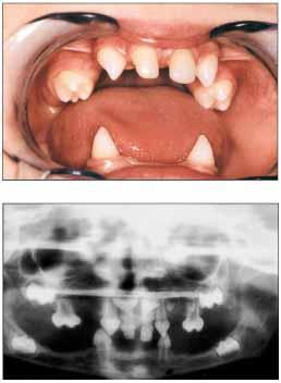 Dentistry lectures for MFDS/MJDF/NBDE/ORE: August 2011