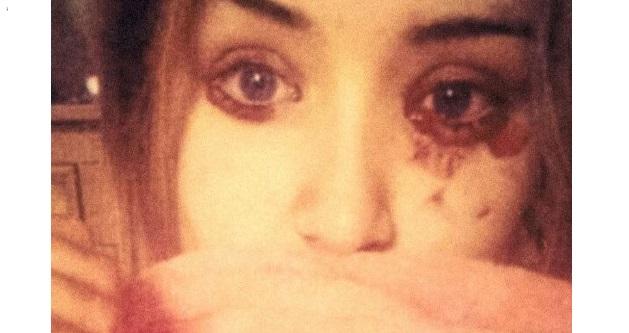 Doktor bingung gadis 16 tahun keluar air mata darah hampir setiap hari