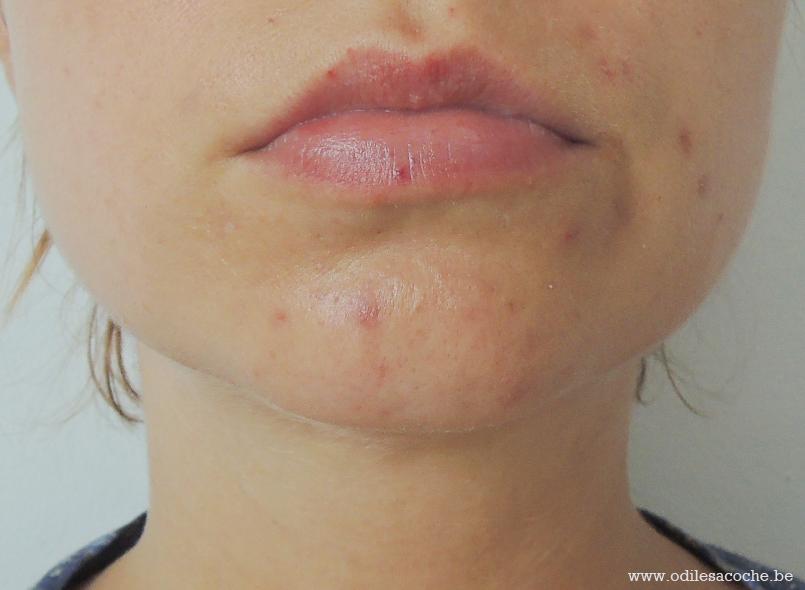 acné adulte évolution positive