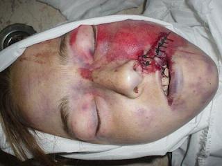 Rachel Corrie. Click.