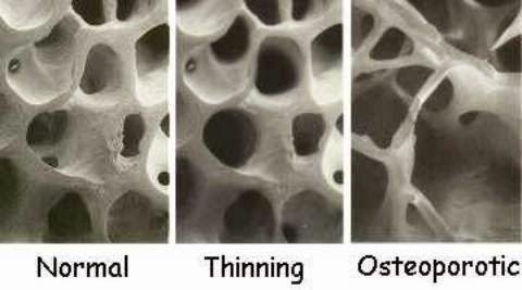 osteoporosis treatment in Mumbai