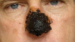 skin cancer on nose