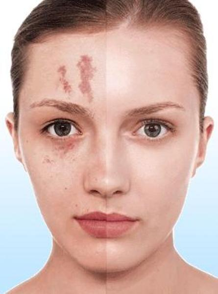 Best Makeup Concealing Scars