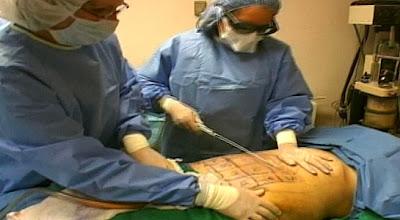 Liposucción sin cirugía. Light in rod