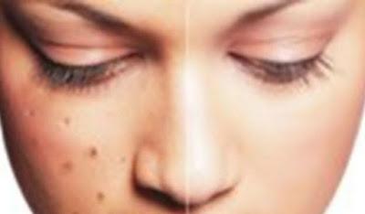Cara menangani flek hitam di wajah